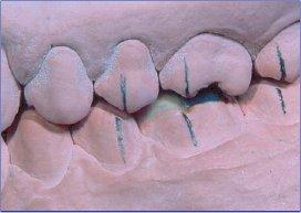 Ceratura del primo molare inferiore