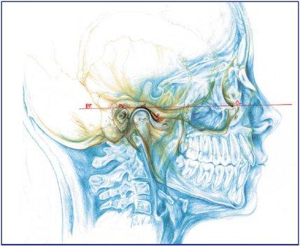 Inclinazione della parete posteriore dell'eminenza articolare sulla quale scorre il condilo nei movimenti di apertura, lateralità e protusione