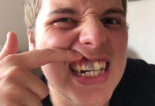 Perché i denti diventano neri